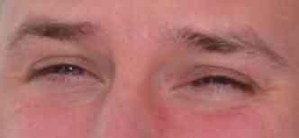 Blickkontakt oder nicht